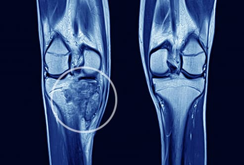 bone cancer in knee
