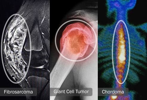 types of rare bone cancer