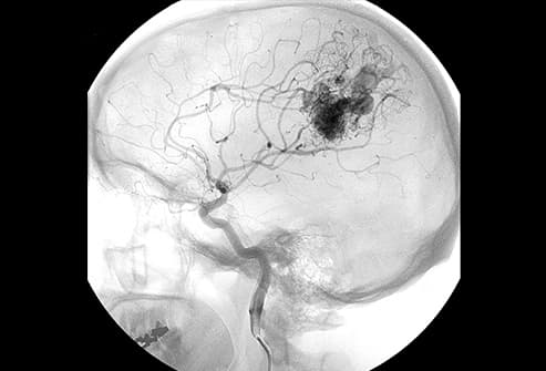 brain scan of aneurysm rupture