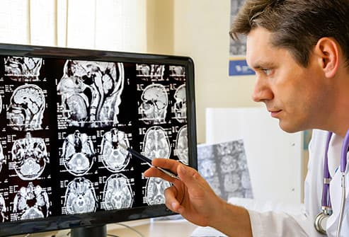 doctor examining mri scan of brain
