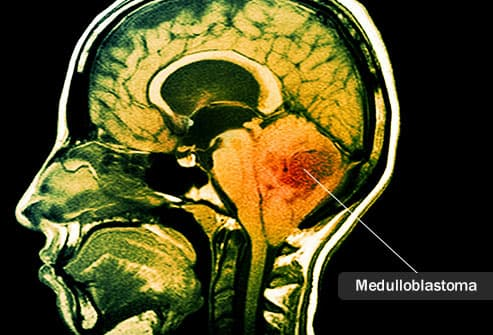 mri scan of medulloblastoma