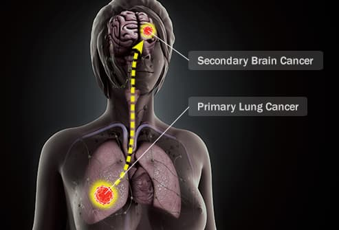 lung cancer to brain migration