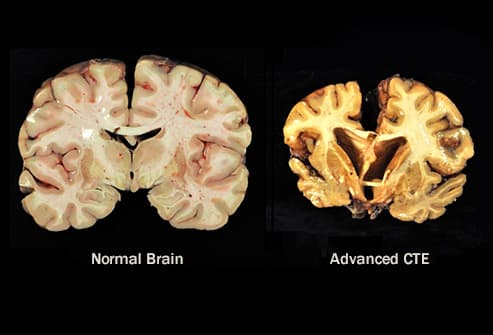 normal brain vs chronic cte
