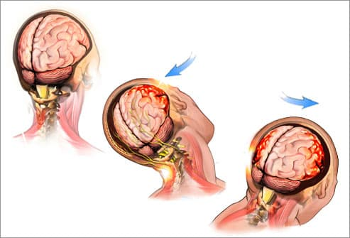 illustration of a concussion