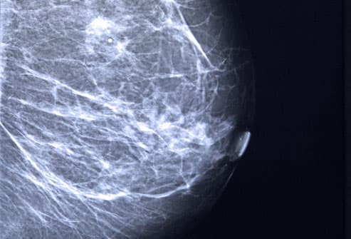 Mammogram Of Breast