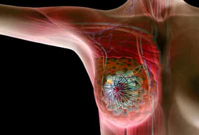 Illustration Of Breast Cancer