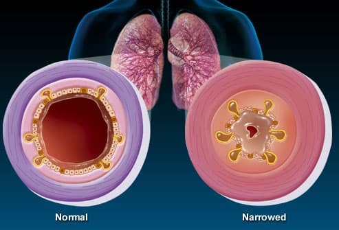 Illustration of normal vs. narrowed bronchioles