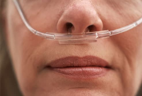 Woman wearing oxygen nasal cannula