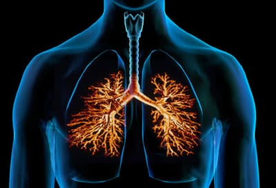 webmd_composite_image_of_bronchitis.jpg?resize=400px:*&output-quality=50
