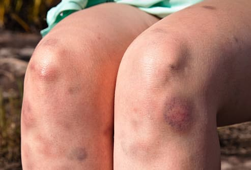 Bruises in Pictures: What the Black and Blue Is Telling You