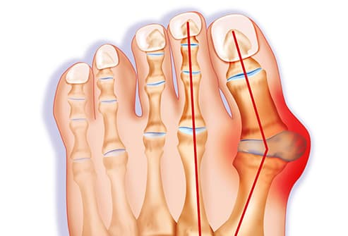 bunion illustration