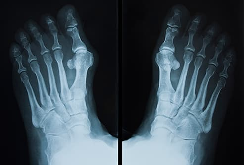 Pictures: Bunion Causes and Treatments