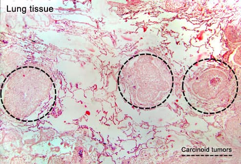 Carcinoid tumors in lung tissue