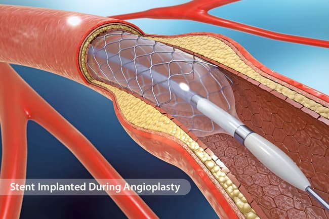 illustration of stent inserted during angioplasty