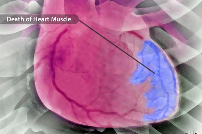 photo of heart tissue death