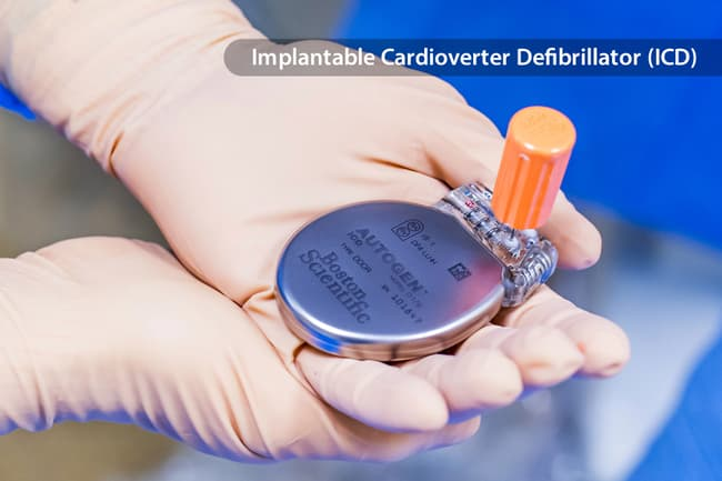 photo of icd in gloved hands