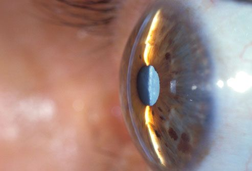 Cataract On Eye Seen From Side