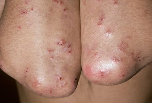 Dermatitis herpetiformis due to celiac disease