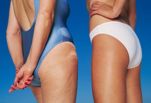 14 Treatments And Remedies For Cellulite