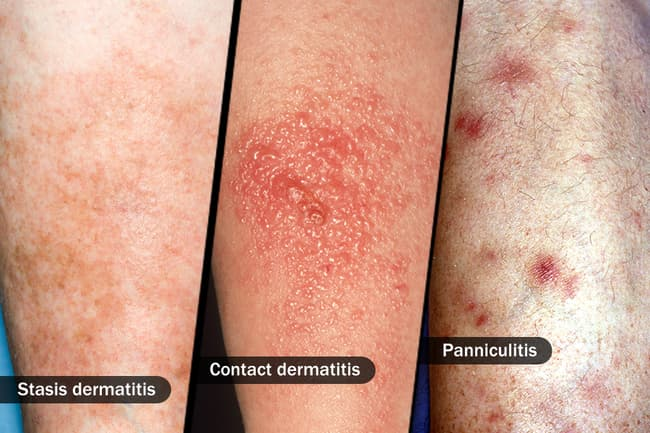 photo of three different skin diseases
