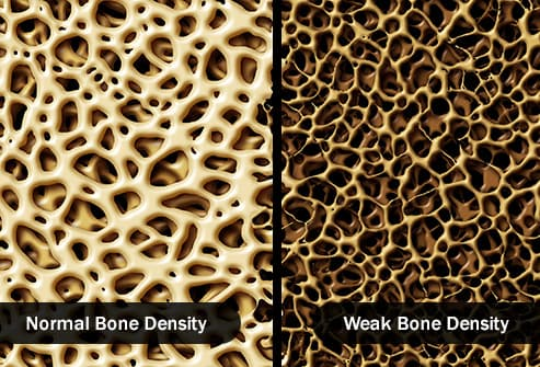 illustration showing strong and weak bone density