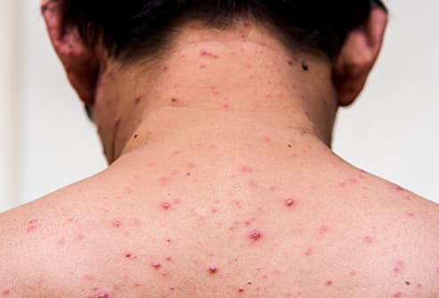 in adult Measles