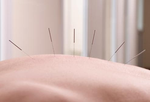 acupuncture needles in back