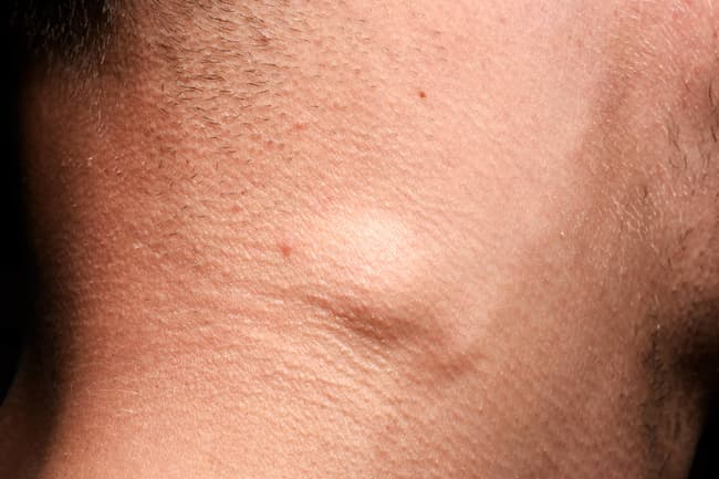photo of swollen lymph node