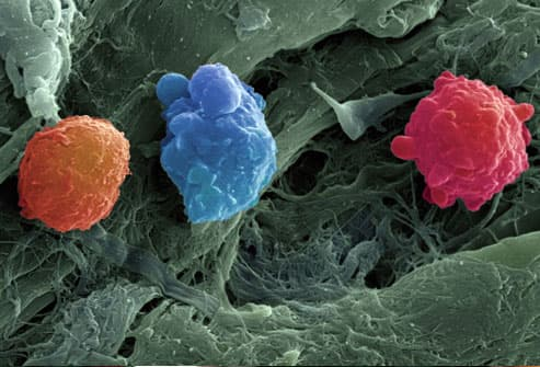 SEM Image of CML Blood Cells