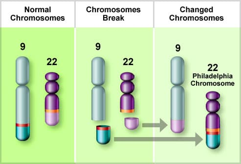 Illustration of the Philadelphia Chromosome