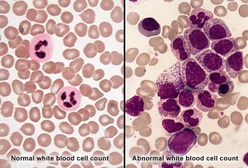 Normal and Abnormal White Blood Cell Counts