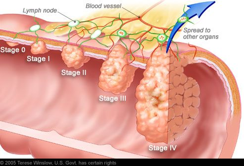 Illustration of various stages of colon cancer