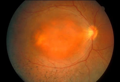 Photo Of Eye Showing Retinitis Pigmentosa