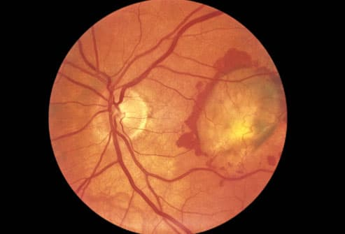 Photograph Of Retnia With Macular Degeneration