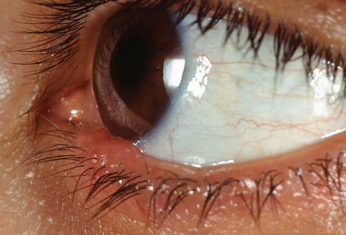 Eye With Sty Infection
