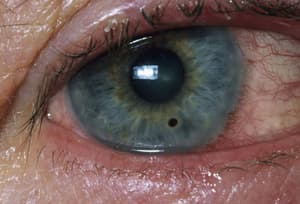 Close Up Of Corneal Abrasion