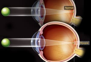 Illustration Of Myopia