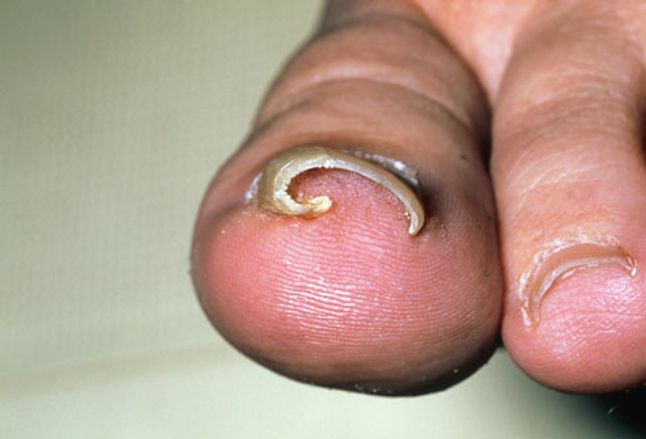 Photo Of Ingrown Toenail On Big Toe