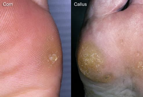 hard skin on bottom of feet