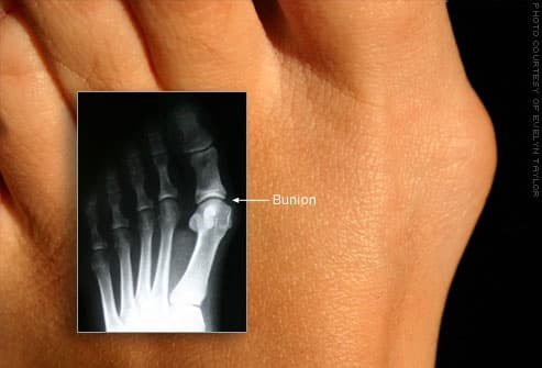 Photo of bunion with inset X-ray image