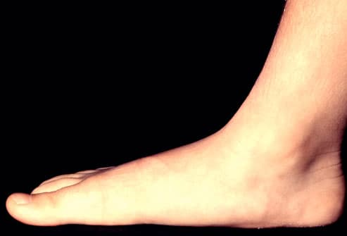 Photo of flat foot (pen planus)