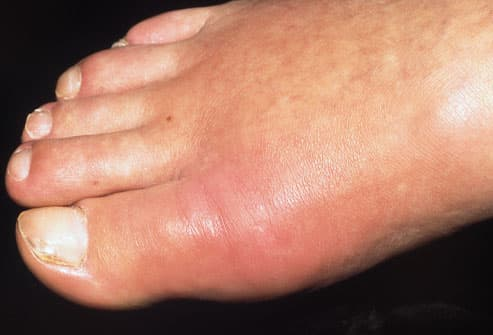Photo of red, swollen foot caused by gout