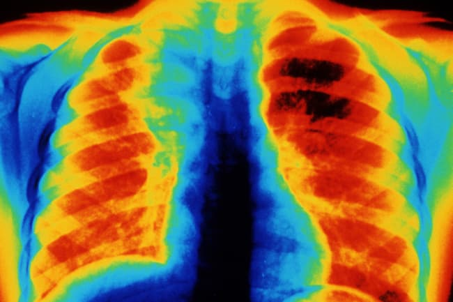 photo of pneumonia in lungs