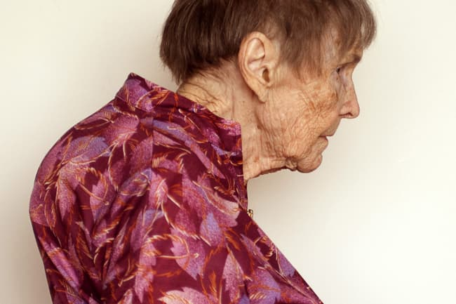 senior woman with kyphosis