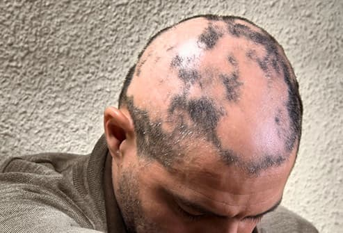 man with alopecia areata