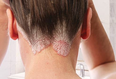 woman with psoriasis in her scalp