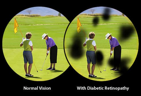 Illustration of diabetic retinopathy