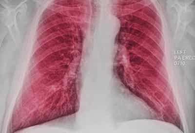 chest xray showing copd
