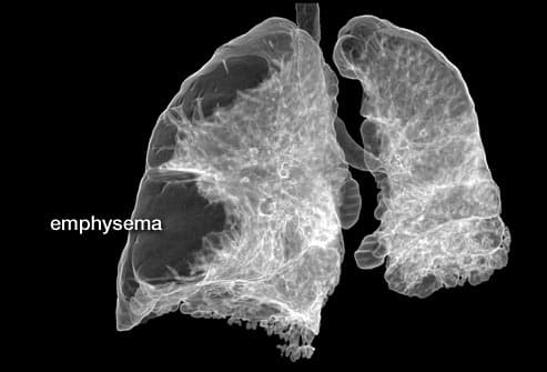 Pictures of Lungs With COPD, What Chronic Obstructive