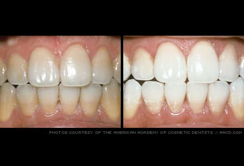 Cosmetic dentistry before and after pictures stained teeth professionally whitened solutioingenieria Image collections
